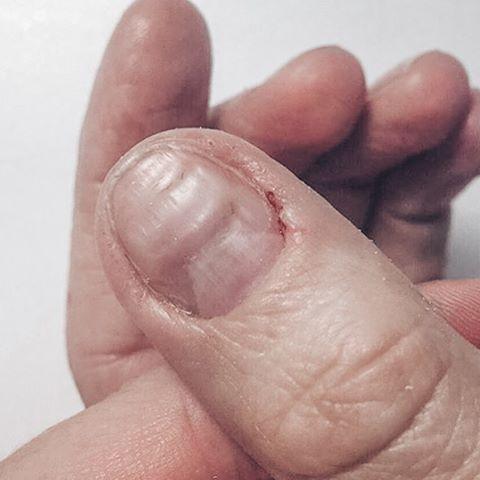 Пропил на ногтевой пластине и рана на боковом валике